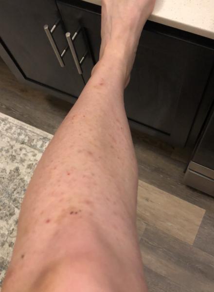 Lower Leg Before Laser Hair Removal