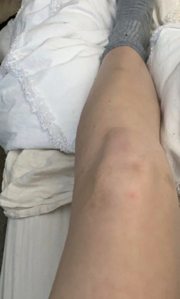 Lower Leg After Laser Hair Removal