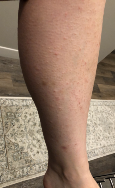 Calf Before Laser Hair Removal
