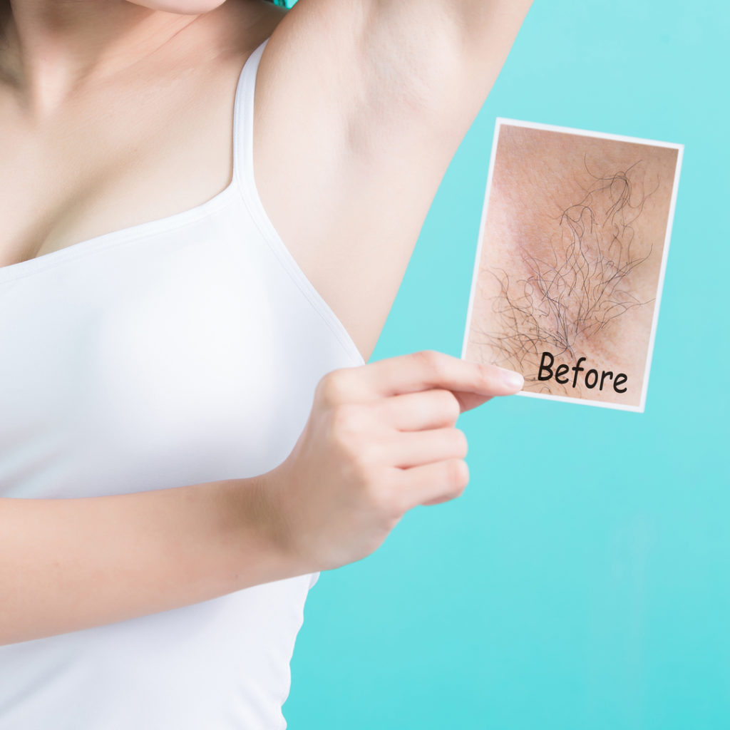 A woman with her arm above her head, holds a picture with her other arm showing the before hair, and now smooth axila or armpit.