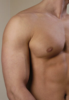 The well sculpted and completely smooth shoudler and pecs of a male showing the result of hair removal.